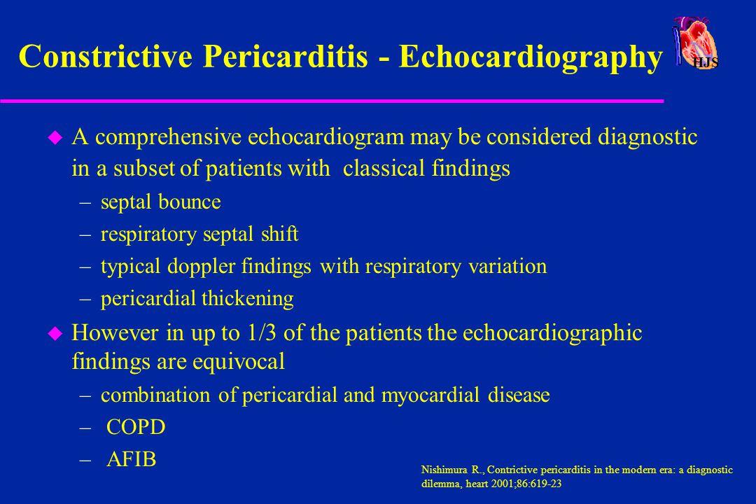 Constrictive Pericarditis - Echocardiography