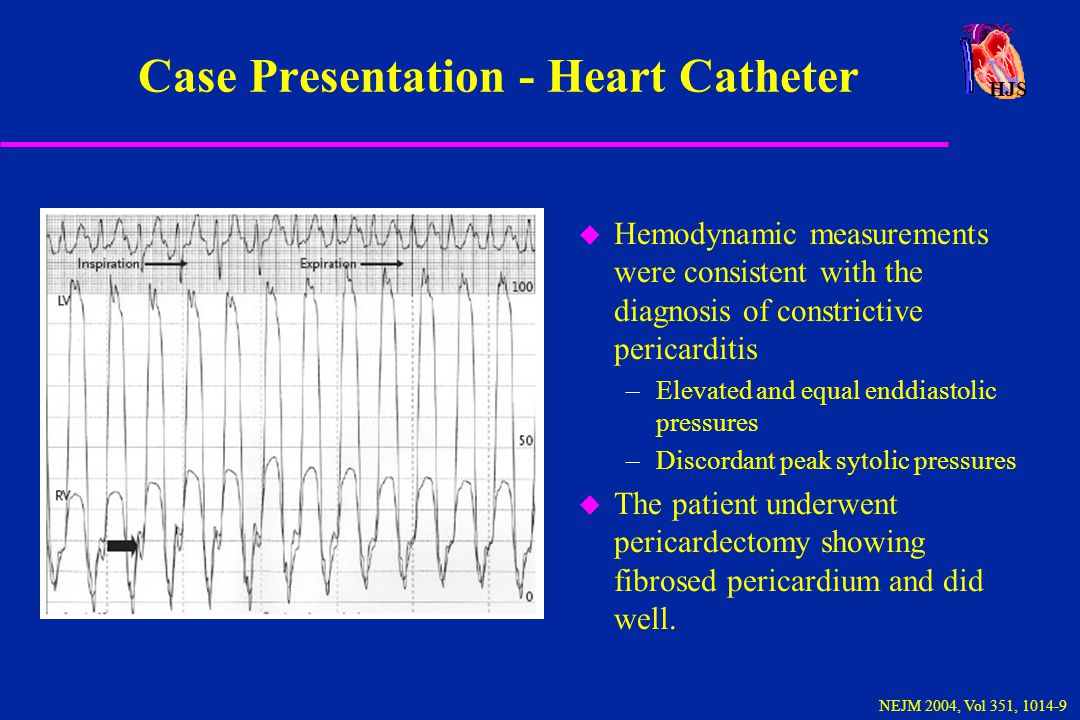 Case Presentation - Heart Catheter