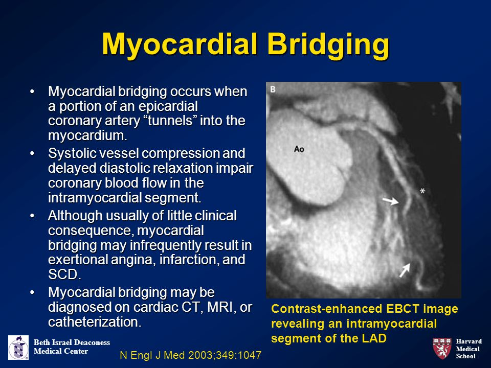 Myocardial Bridging Myocardial bridging occurs when a portion of an epicardial coronary artery tunnels into the myocardium.