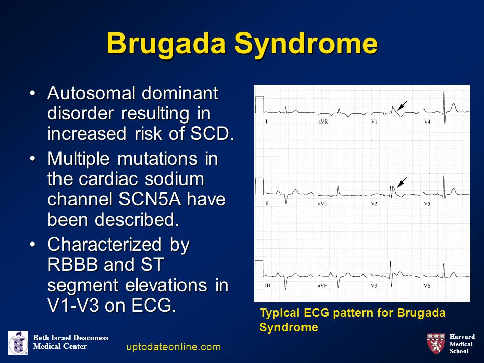 Brugada Syndrome Autosomal dominant disorder resulting in increased risk of SCD.