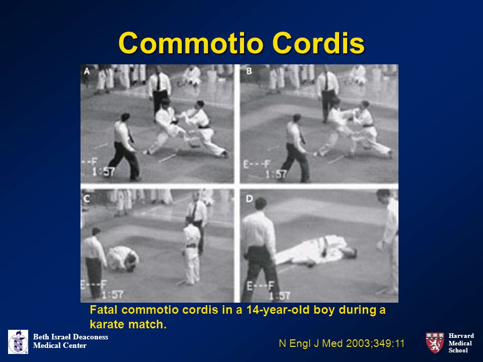 Commotio Cordis Fatal commotio cordis in a 14-year-old boy during a karate match.