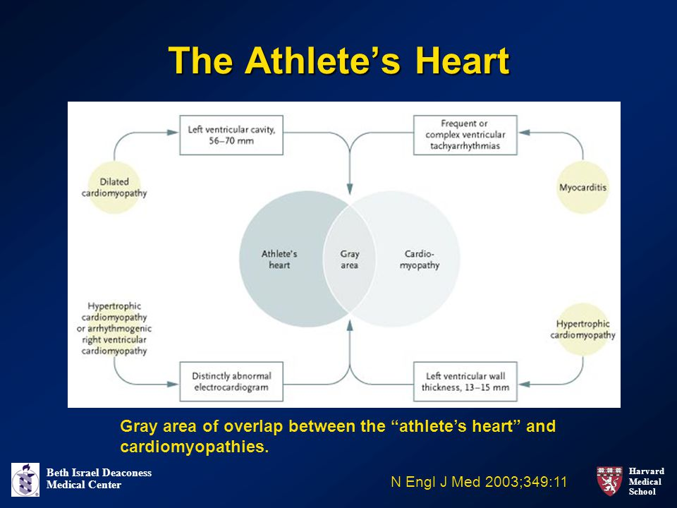 The Athlete's Heart