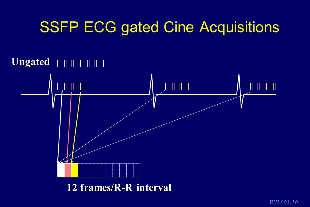 SSFP ECG gated Cine Acquisitions