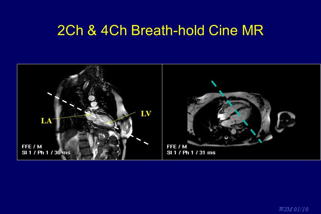 2Ch & 4Ch Breath-hold Cine MR