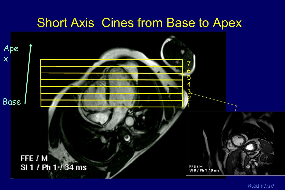 Short Axis Cines from Base to Apex