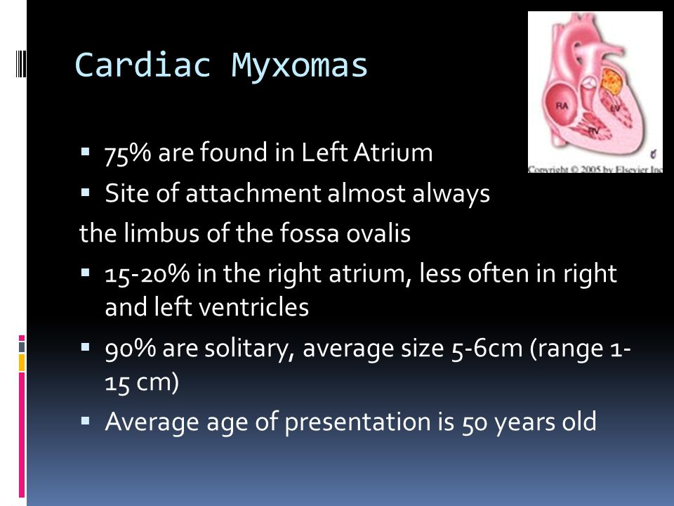 Cardiac Myxomas 75% are found in Left Atrium