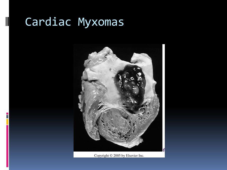 Cardiac Myxomas