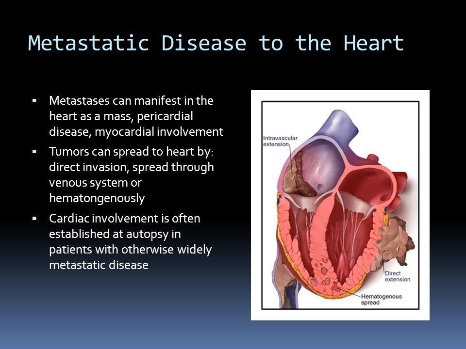 Metastatic Disease to the Heart