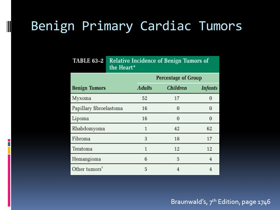 Benign Primary Cardiac Tumors