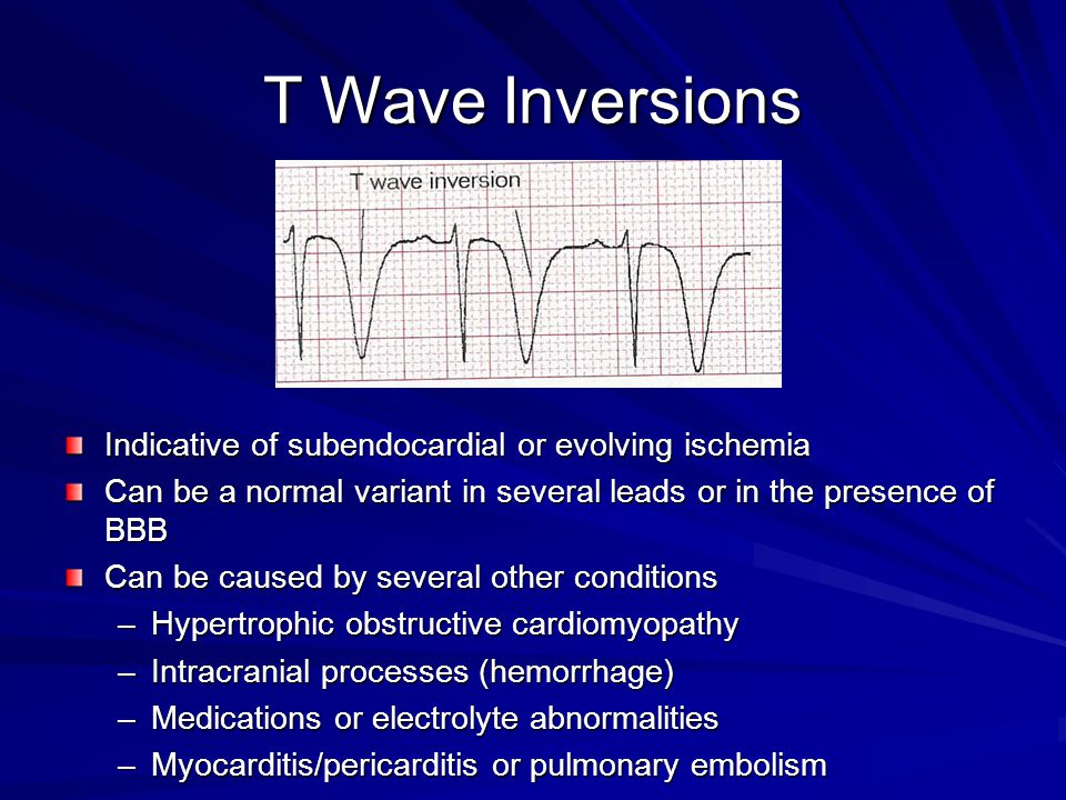 T Wave Inversions Indicative of subendocardial or evolving ischemia