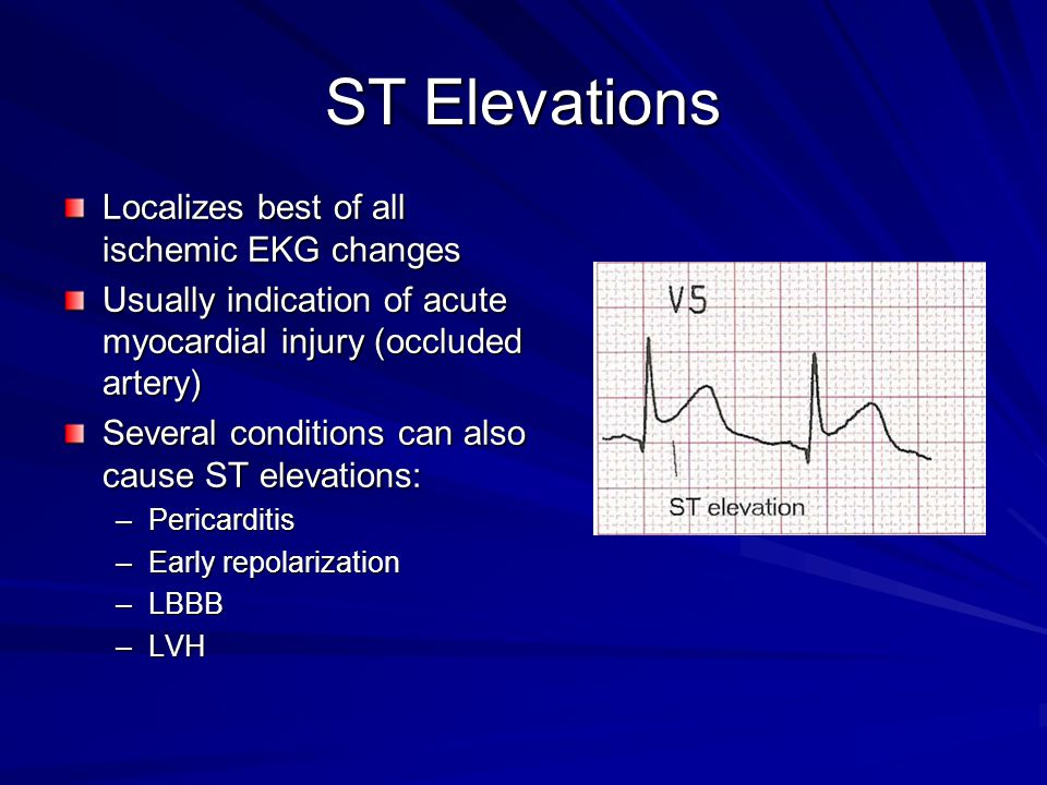 ST Elevations Localizes best of all ischemic EKG changes