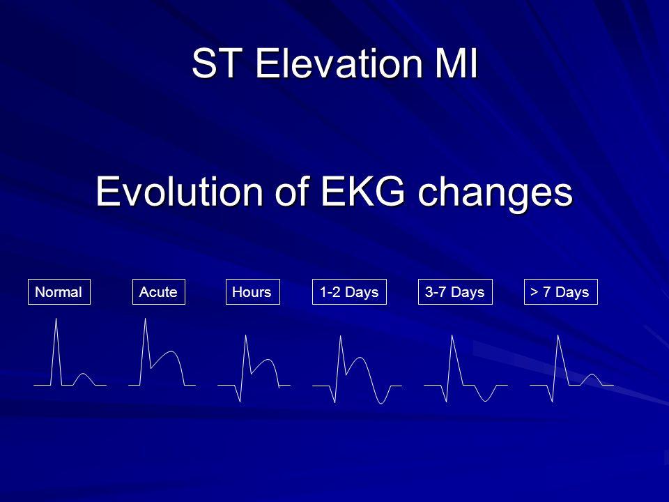 Evolution of EKG changes