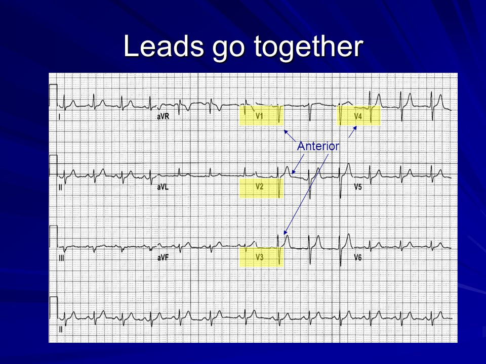 Leads go together Anterior