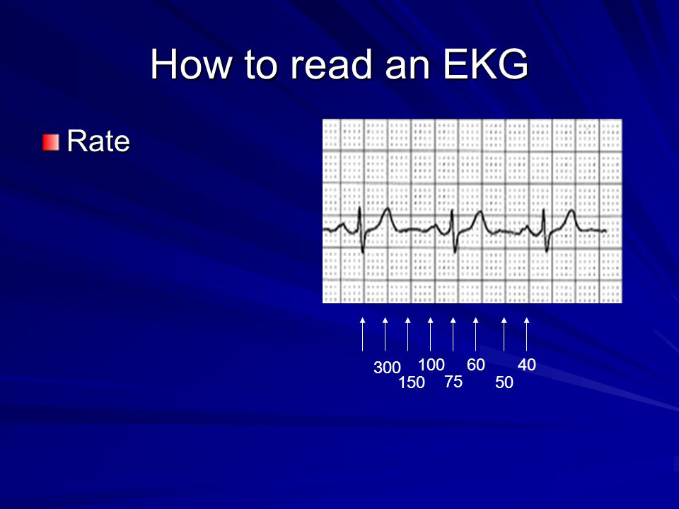 How to read an EKG Rate 300 100 60 40 150 75 50