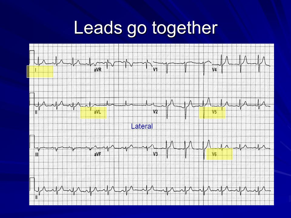 Leads go together Lateral