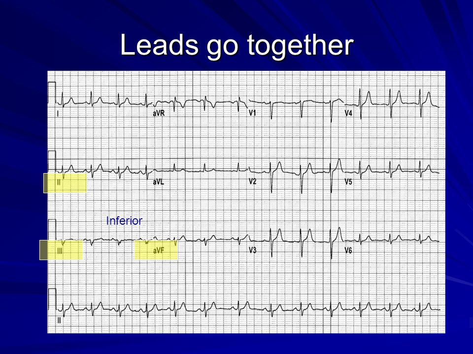 Leads go together Inferior