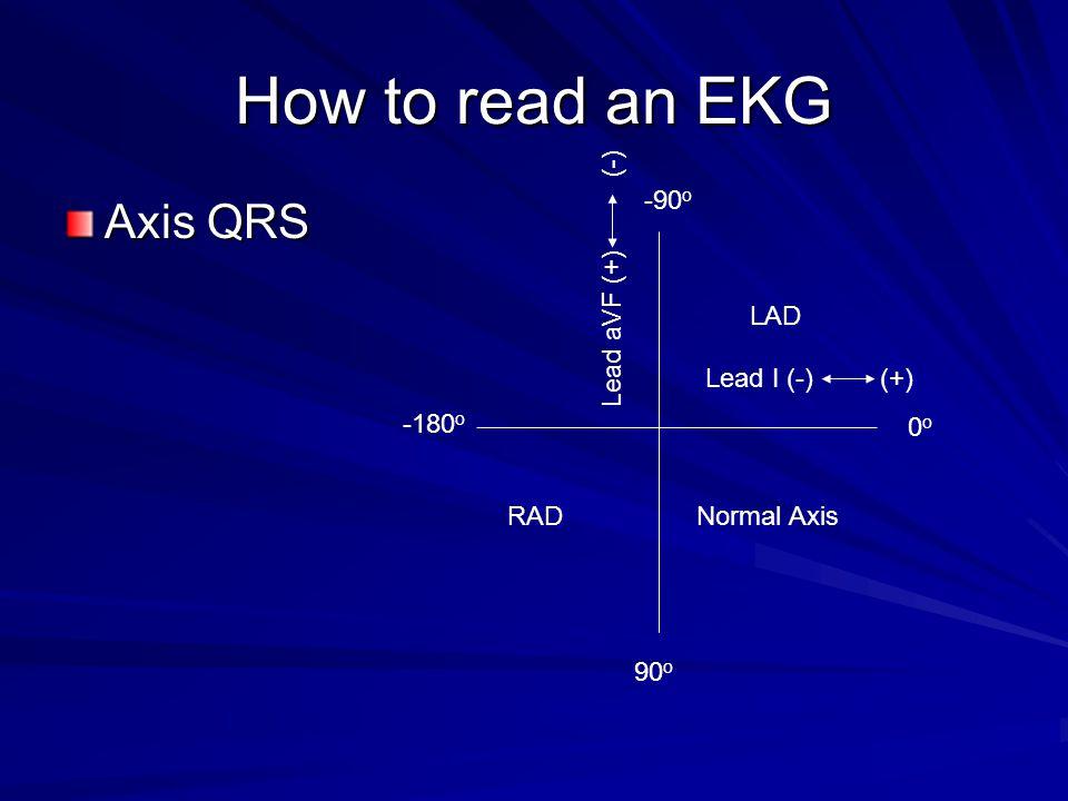 How to read an EKG Axis QRS Lead aVF (+) (-) -90o LAD Lead I (-) (+)
