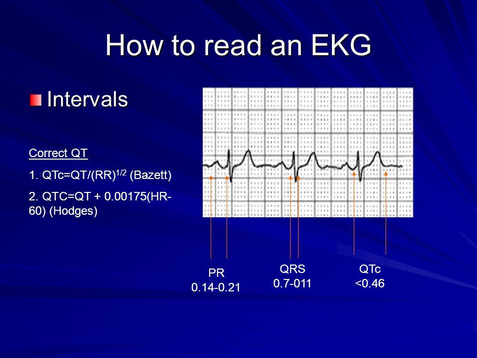 How to read an EKG Intervals Correct QT 1. QTc=QT/(RR)1/2 (Bazett)