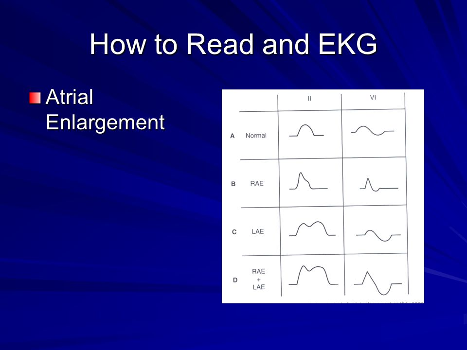 How to Read and EKG Atrial Enlargement