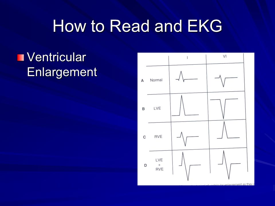 How to Read and EKG Ventricular Enlargement