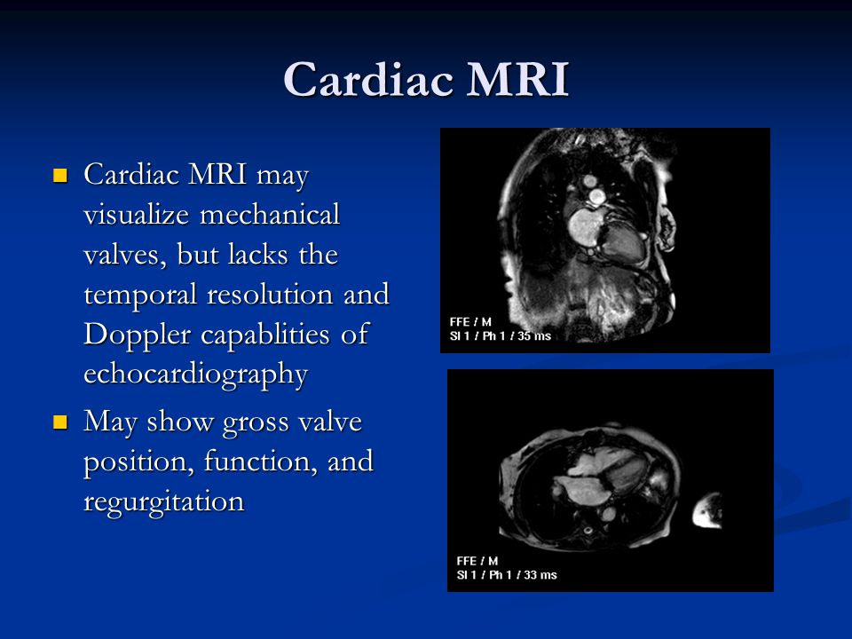 Cardiac MRI Cardiac MRI may visualize mechanical valves, but lacks the temporal resolution and Doppler capablities of echocardiography.