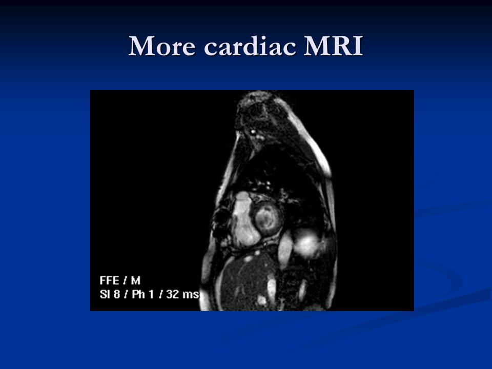 More cardiac MRI