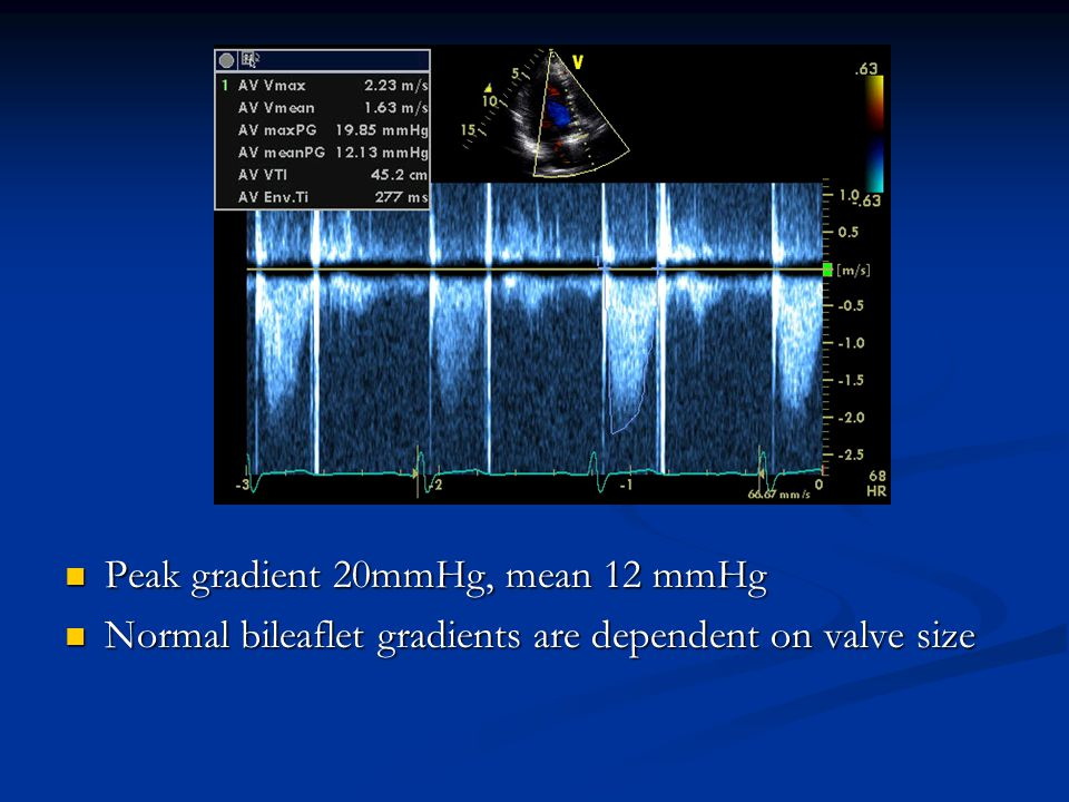 Peak gradient 20mmHg, mean 12 mmHg