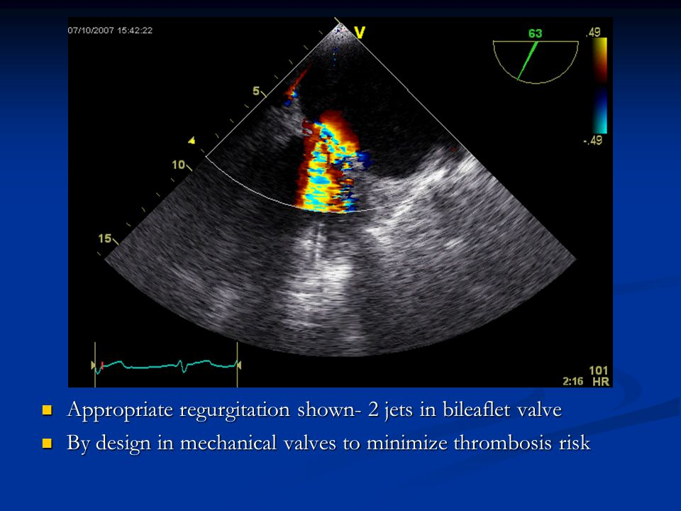 Appropriate regurgitation shown- 2 jets in bileaflet valve