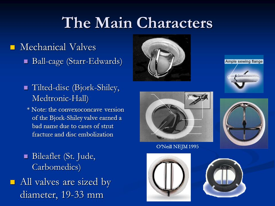 The Main Characters Mechanical Valves