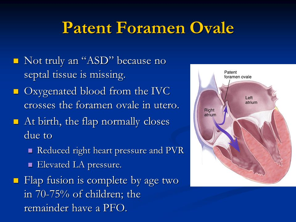 Patent Foramen Ovale Not truly an ASD because no septal tissue is missing. Oxygenated blood from the IVC crosses the foramen ovale in utero.