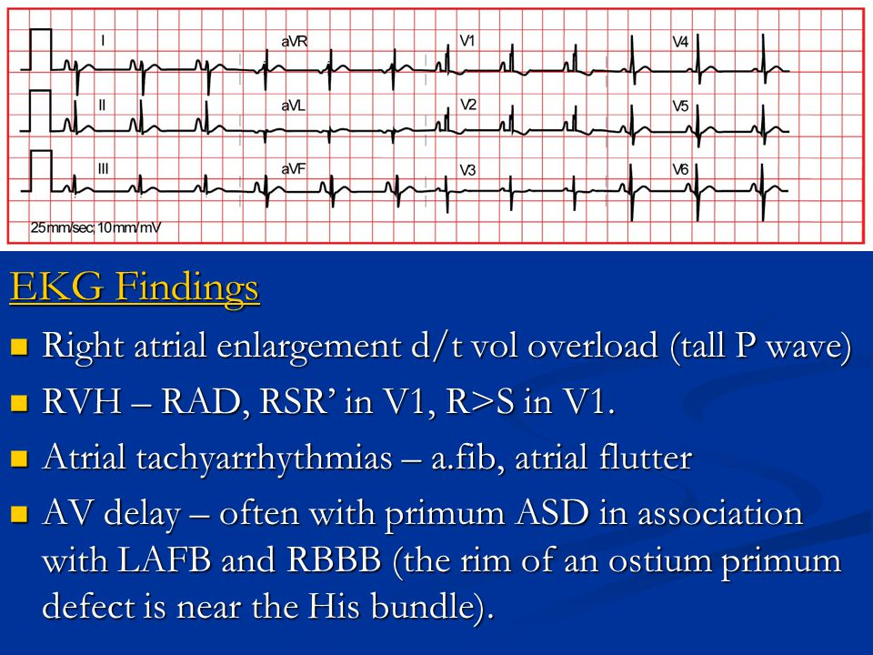 EKG Findings Right atrial enlargement d/t vol overload (tall P wave)