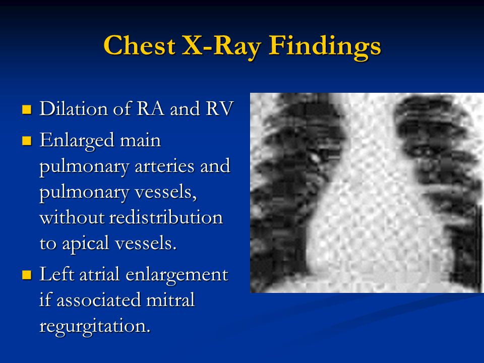 Chest X-Ray Findings Dilation of RA and RV