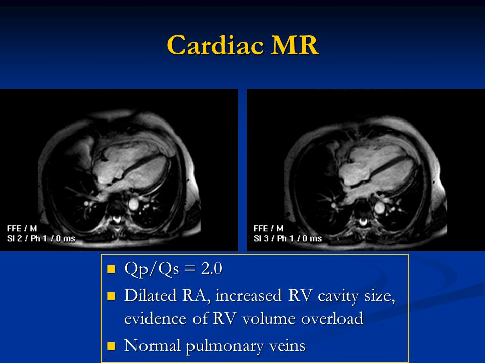 Cardiac MR Qp/Qs = 2.0. Dilated RA, increased RV cavity size, evidence of RV volume overload.