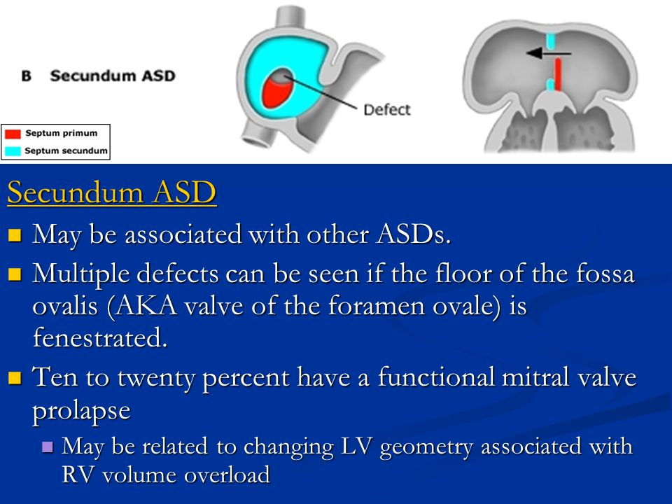 Secundum ASD May be associated with other ASDs.