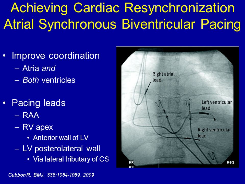 Achieving Cardiac Resynchronization Atrial Synchronous Biventricular Pacing