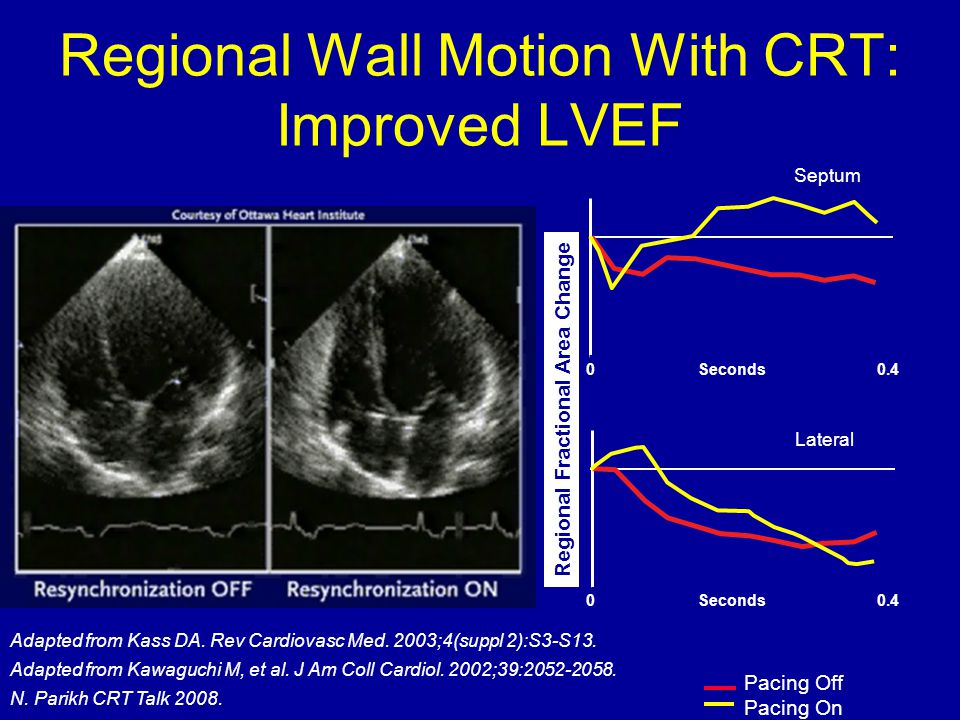 Regional Wall Motion With CRT: Improved LVEF
