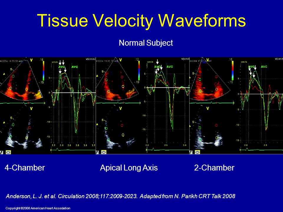 Tissue Velocity Waveforms
