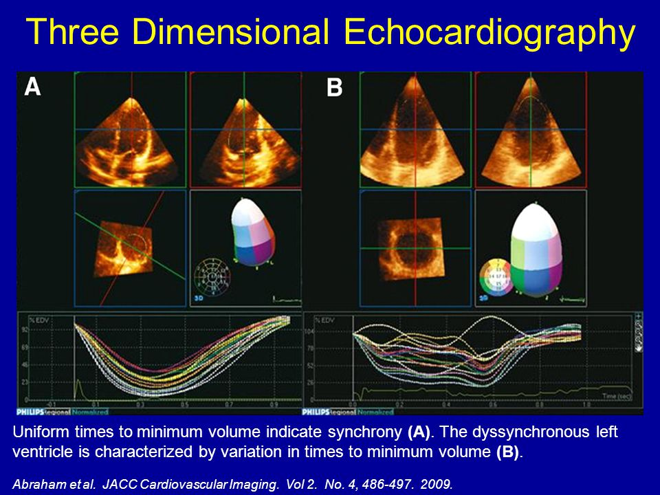 Three Dimensional Echocardiography