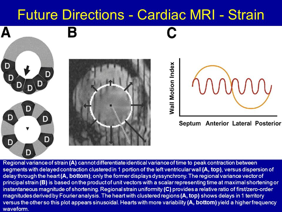 Future Directions - Cardiac MRI - Strain