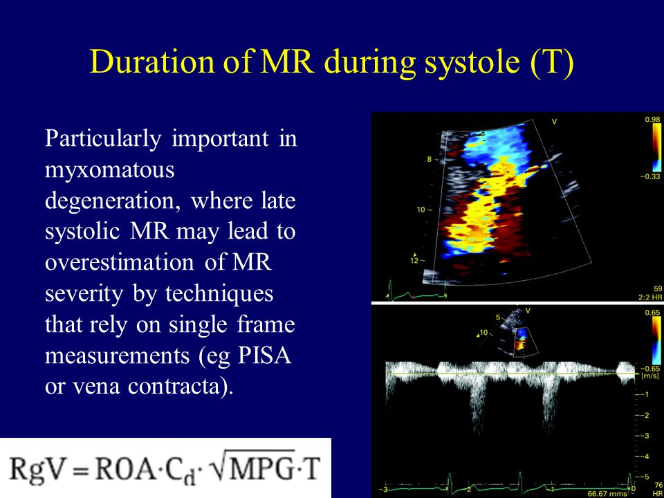 Duration of MR during systole (T)