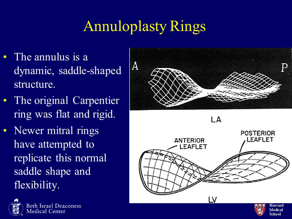 Annuloplasty Rings The annulus is a dynamic, saddle-shaped structure.