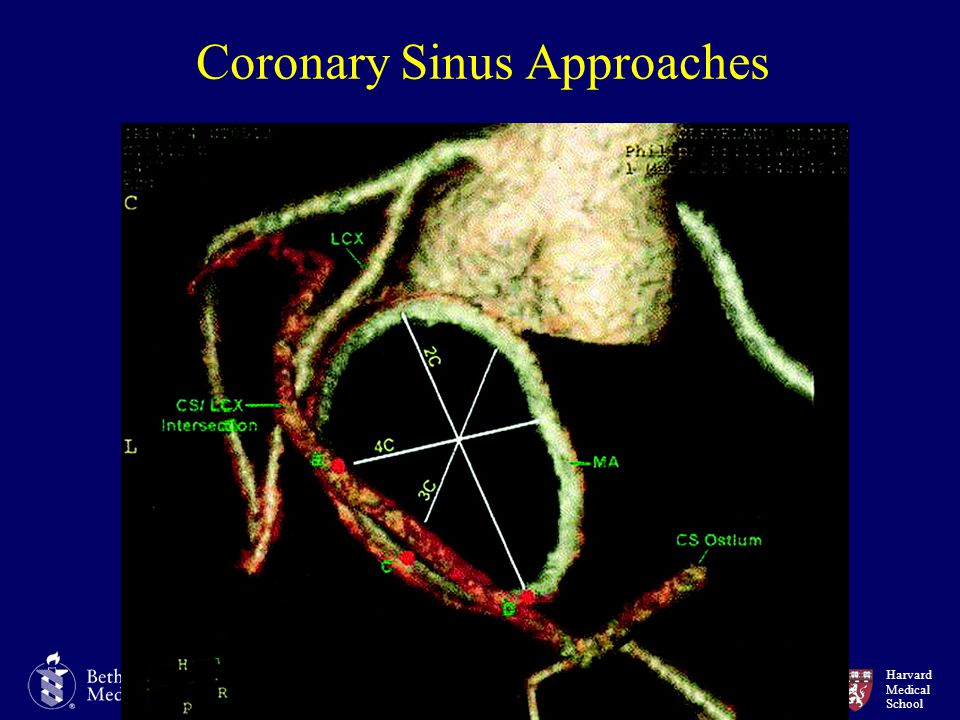 Coronary Sinus Approaches