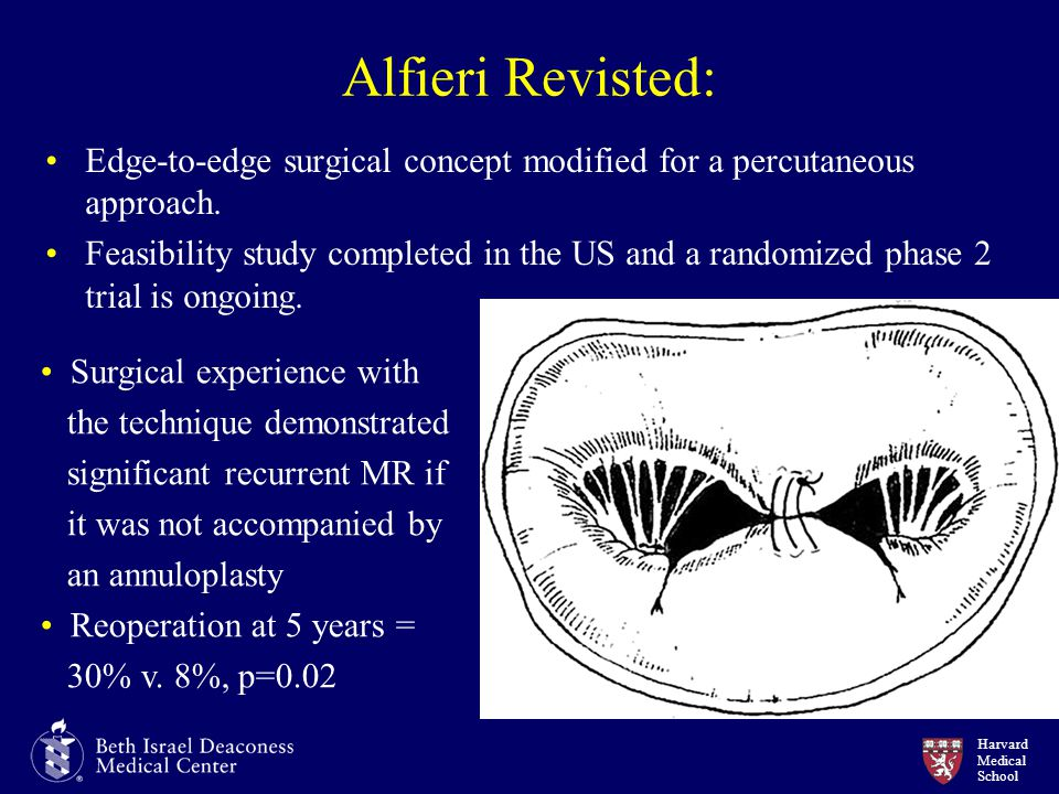 Alfieri Revisted: Edge-to-edge surgical concept modified for a percutaneous approach.