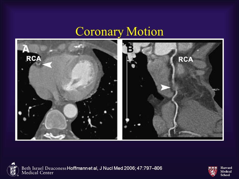Hoffmann et al, J Nucl Med 2006; 47:797–806