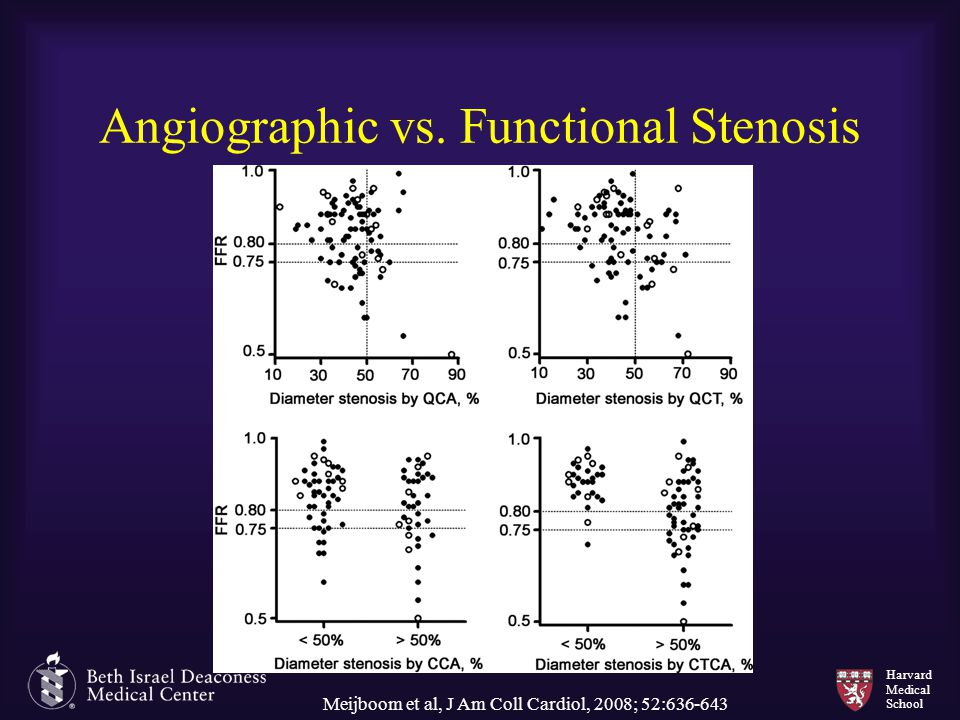Angiographic vs. Functional Stenosis