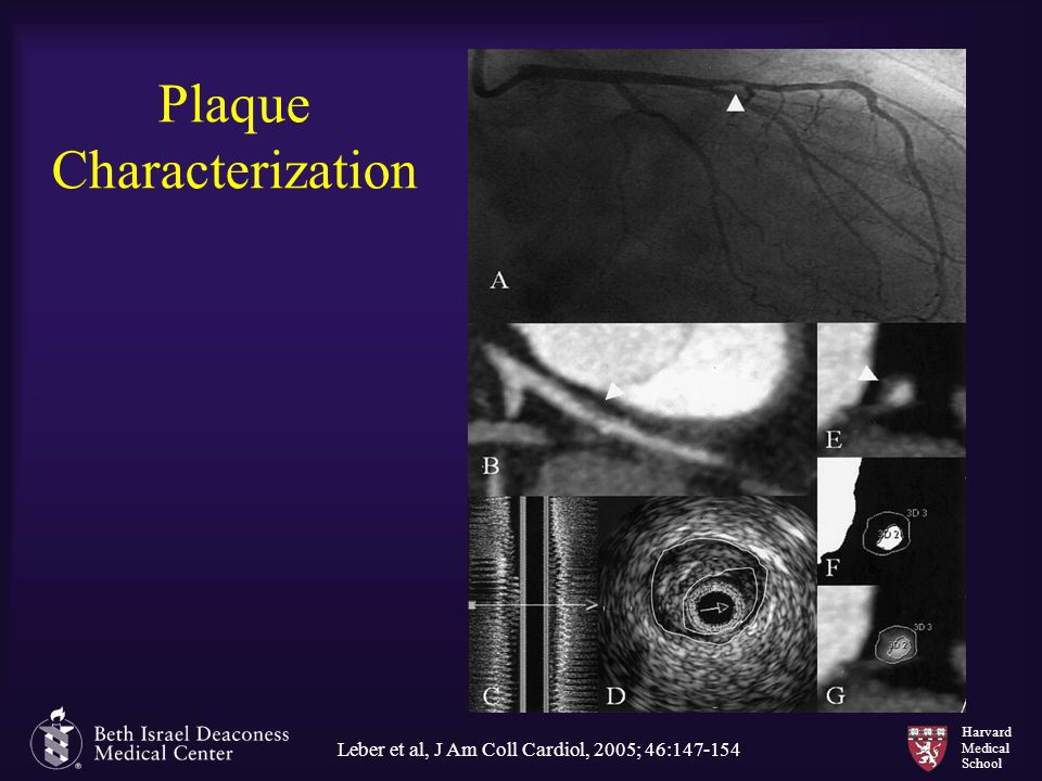 Plaque Characterization