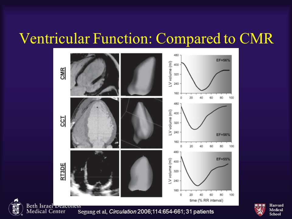 Ventricular Function: Compared to CMR
