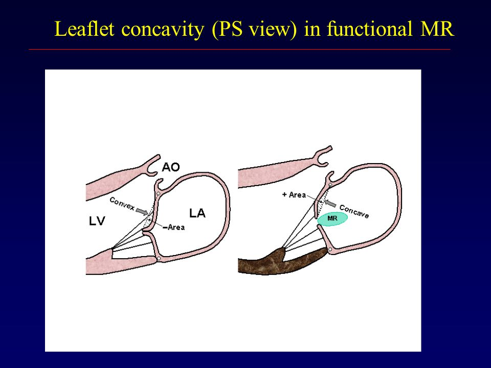 Leaflet concavity (PS view) in functional MR