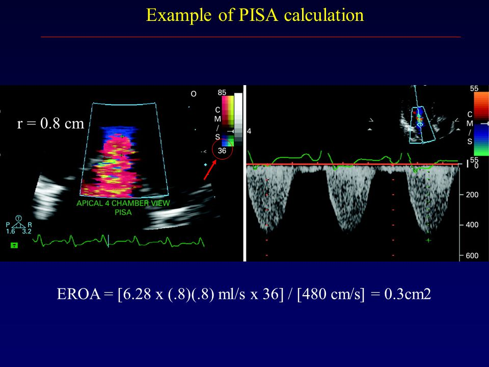 Example of PISA calculation