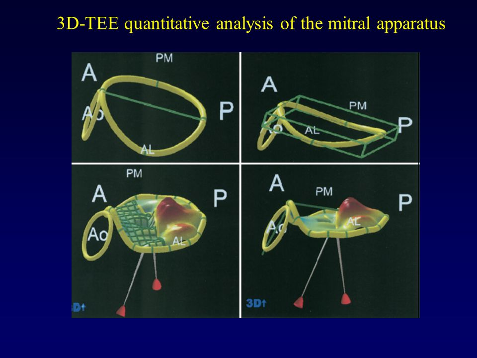 3D-TEE quantitative analysis of the mitral apparatus
